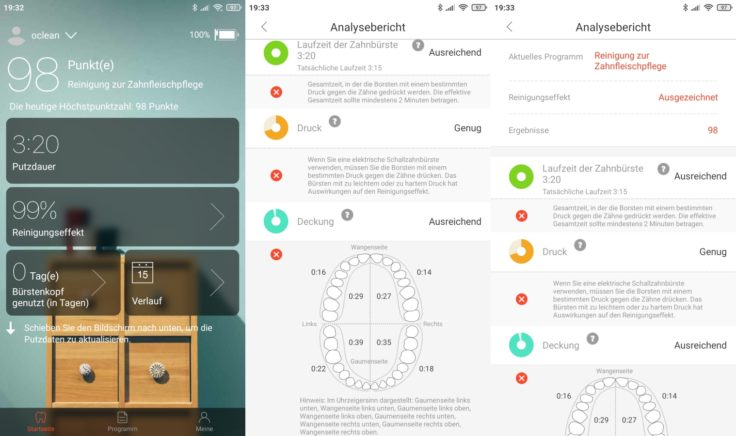 Oclean X Pro Elite elektrische smarte Zahnbürste App Analyseberichte